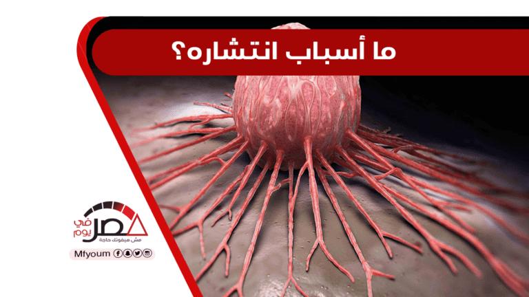 في يومه العالمي.. أرقام مرعبة عن مرض السرطان في مصر