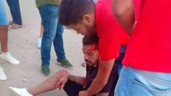 عمرو زكي لاعب الزمالك يتعرض لحادث مروع.. تفاصيل وصور