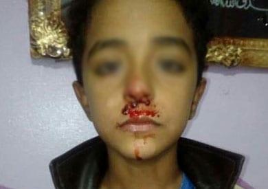 استبعاد مدرس لضرب تلميذ ابتدائي في الغربية: نزيف بالأنف