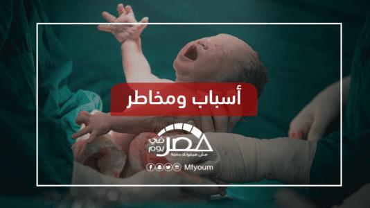"""مصر الأولى عالميا في الولادة القيصرية.. """"بيزنس"""" أم ضرورة طبية؟"""